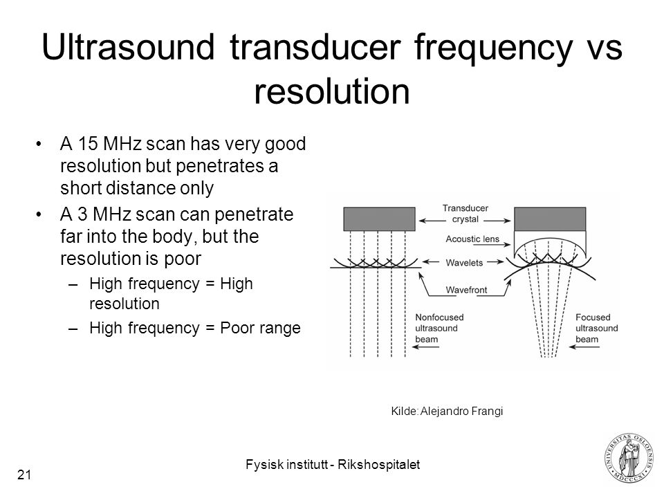 Fysisk institutt - Rikshospitalet 21 Ultrasound transducer frequency vs resolution A 15 MHz scan has very good resolution but penetrates a short distance only A 3 MHz scan can penetrate far into the body, but the resolution is poor –High frequency = High resolution –High frequency = Poor range Kilde: Alejandro Frangi