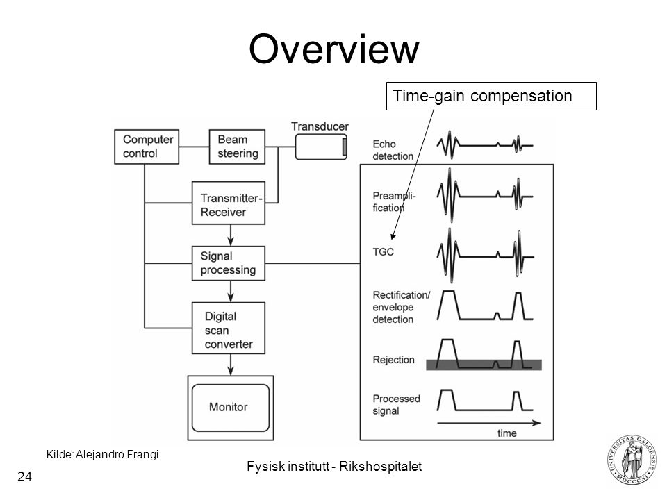 Fysisk institutt - Rikshospitalet 24 Overview Time-gain compensation Kilde: Alejandro Frangi
