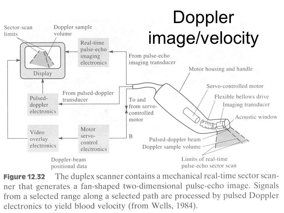 Fysisk institutt - Rikshospitalet 33 Doppler image/velocity