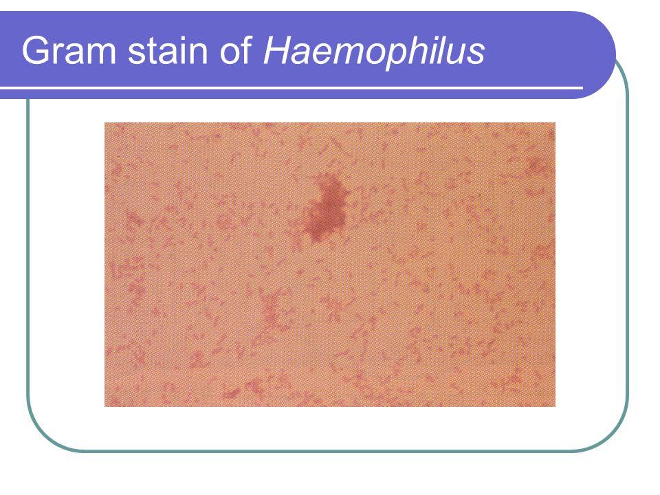 Gram stain of Haemophilus