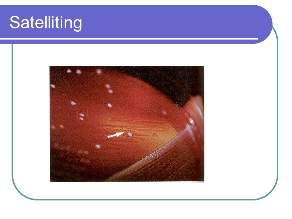 Haemophilus Meningitis – occurs in individuals between 2 months and three years of age.