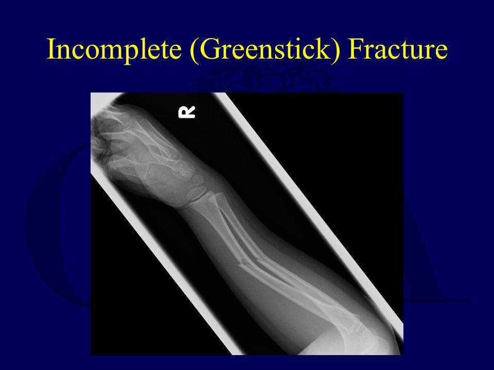 Incomplete (Greenstick) Fracture