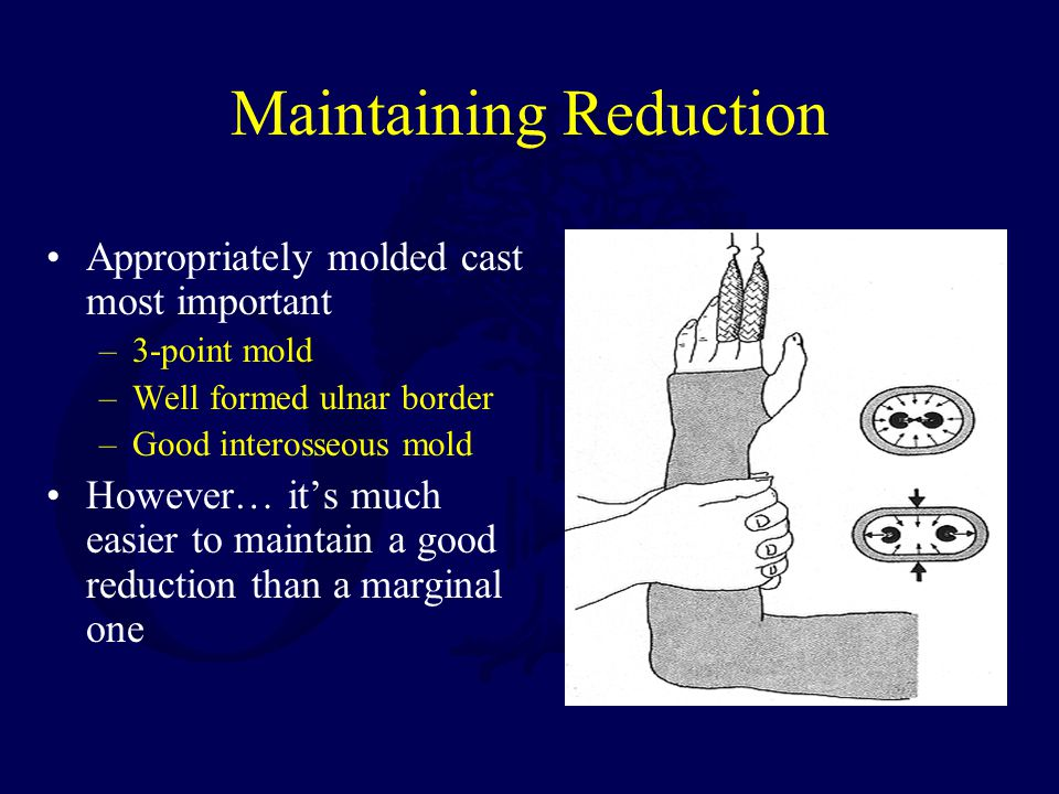Maintaining Reduction Appropriately molded cast most important –3-point mold –Well formed ulnar border –Good interosseous mold However… it's much easier to maintain a good reduction than a marginal one