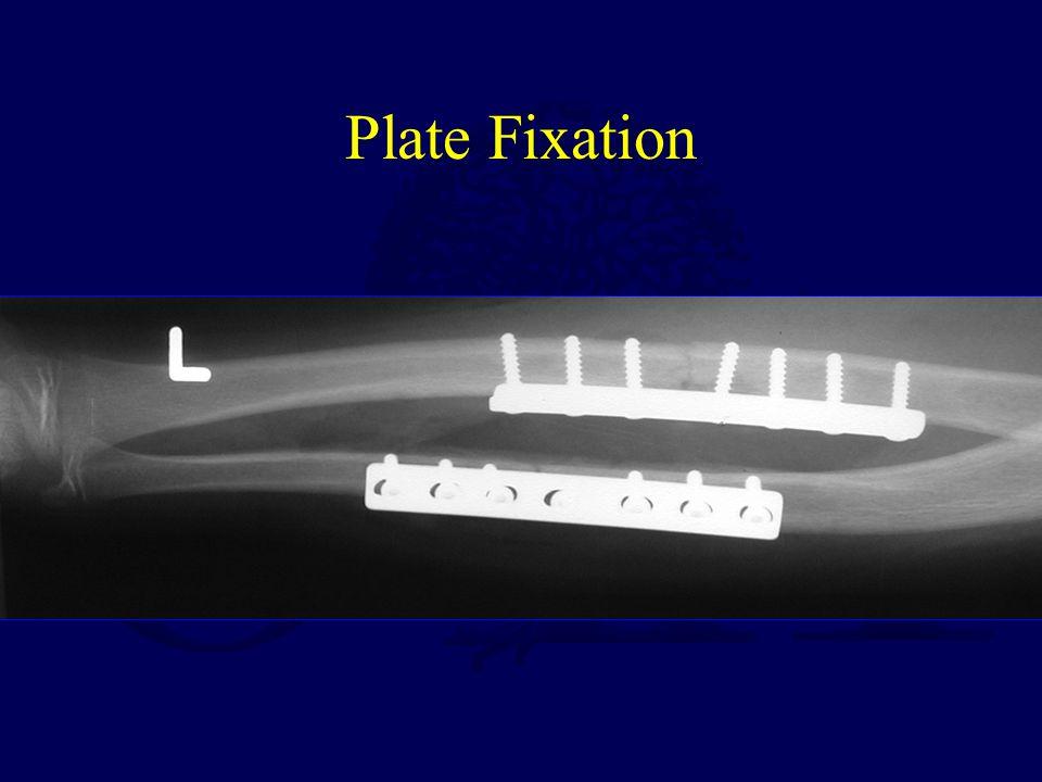 Plate Fixation