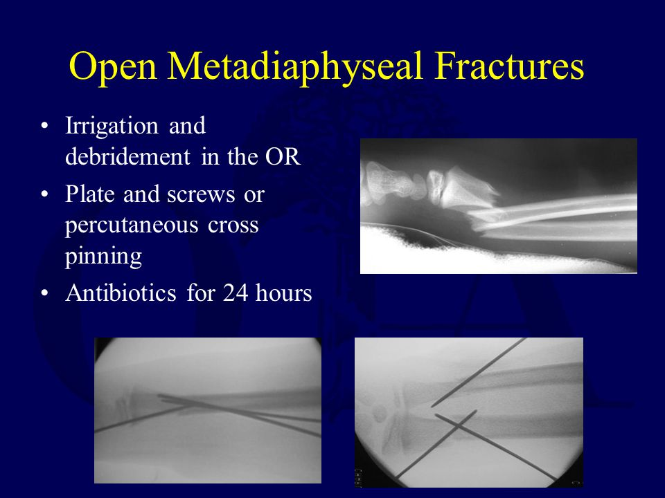 Open Metadiaphyseal Fractures Irrigation and debridement in the OR Plate and screws or percutaneous cross pinning Antibiotics for 24 hours