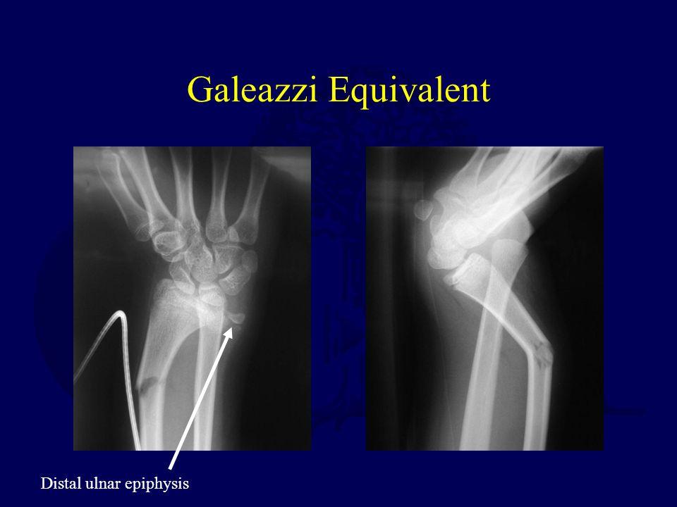 Galeazzi Equivalent Distal ulnar epiphysis