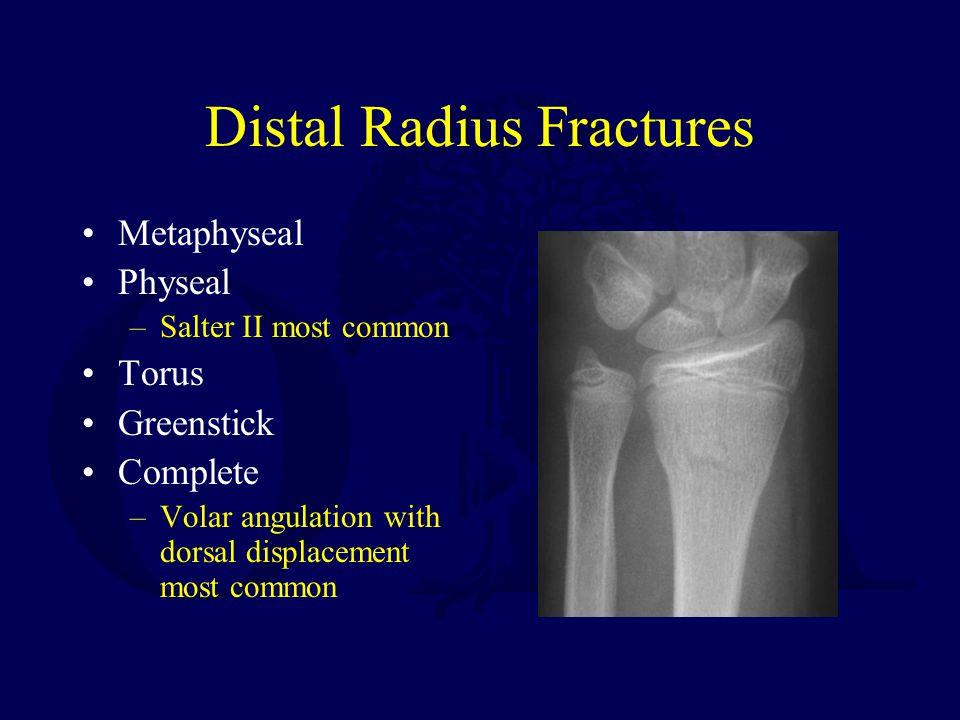 Distal Radius Fractures Metaphyseal Physeal –Salter II most common Torus Greenstick Complete –Volar angulation with dorsal displacement most common