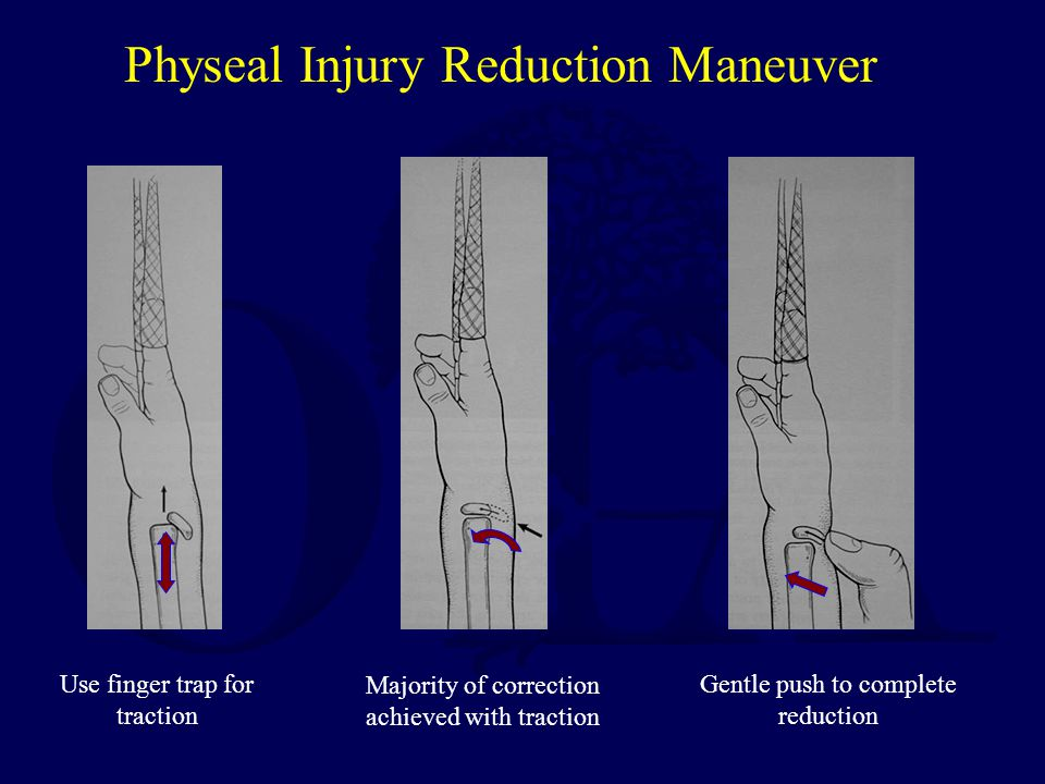 Physeal Injury Reduction Maneuver Use finger trap for traction Gentle push to complete reduction Majority of correction achieved with traction