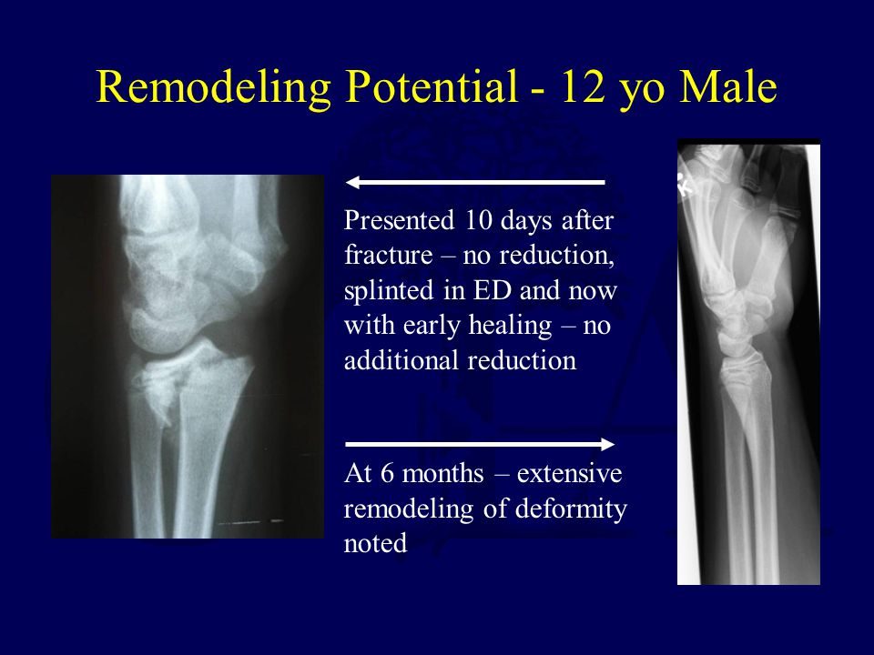 Remodeling Potential - 12 yo Male Presented 10 days after fracture – no reduction, splinted in ED and now with early healing – no additional reduction At 6 months – extensive remodeling of deformity noted