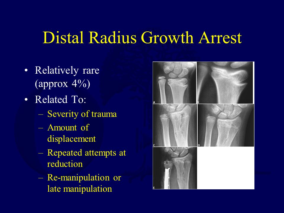 Distal Radius Growth Arrest Relatively rare (approx 4%) Related To: –Severity of trauma –Amount of displacement –Repeated attempts at reduction –Re-manipulation or late manipulation