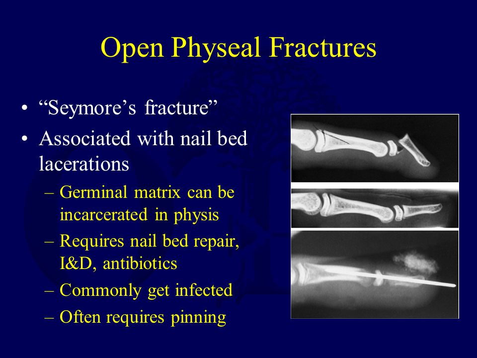 Open Physeal Fractures Seymore's fracture Associated with nail bed lacerations –Germinal matrix can be incarcerated in physis –Requires nail bed repair, I&D, antibiotics –Commonly get infected –Often requires pinning