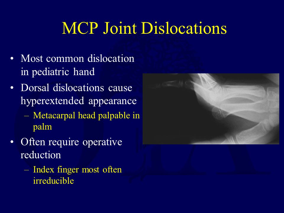 MCP Joint Dislocations Most common dislocation in pediatric hand Dorsal dislocations cause hyperextended appearance –Metacarpal head palpable in palm Often require operative reduction –Index finger most often irreducible