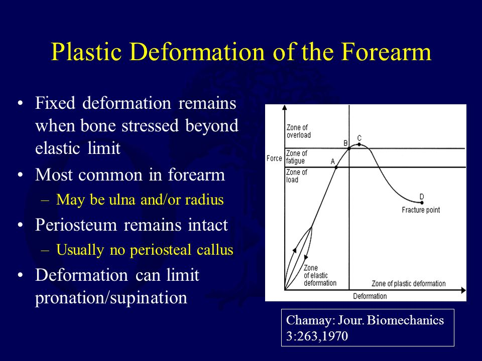 Plastic Deformation of the Forearm Fixed deformation remains when bone stressed beyond elastic limit Most common in forearm –May be ulna and/or radius Periosteum remains intact –Usually no periosteal callus Deformation can limit pronation/supination Chamay: Jour.