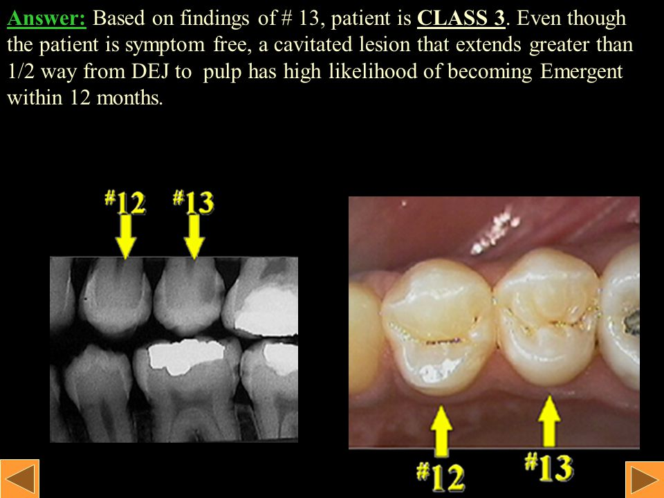 Tooth # 13: No history of symptoms. No clinical findings.