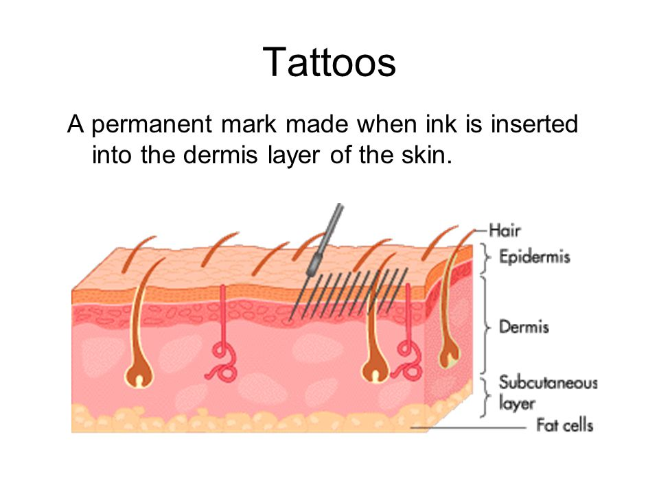 Tattoos A permanent mark made when ink is inserted into the dermis layer of the skin.