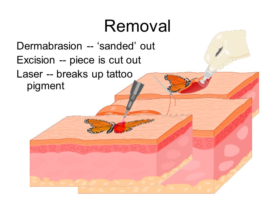 Removal Dermabrasion -- 'sanded' out Excision -- piece is cut out Laser -- breaks up tattoo pigment