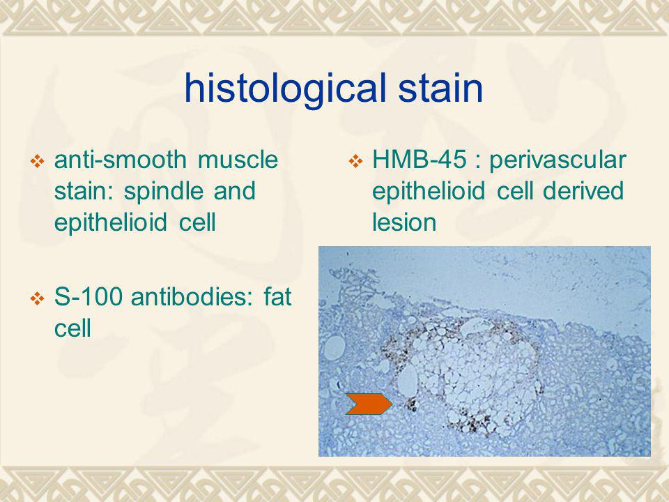 histological stain  anti-smooth muscle stain: spindle and epithelioid cell  S-100 antibodies: fat cell  HMB-45 : perivascular epithelioid cell derived lesion
