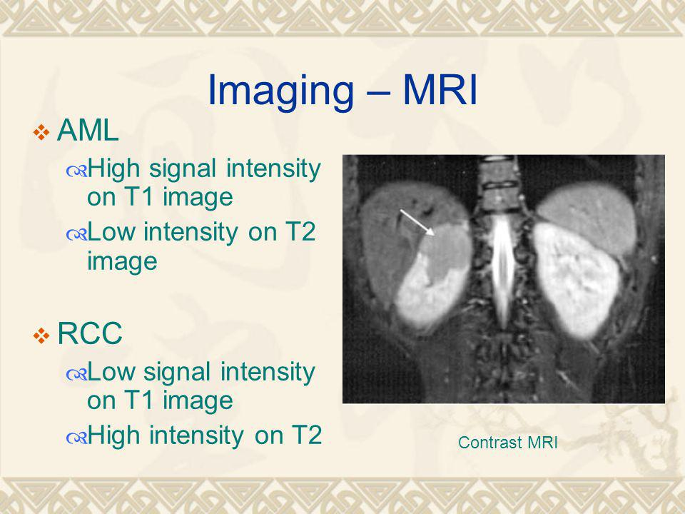 Imaging – MRI  AML  High signal intensity on T1 image  Low intensity on T2 image  RCC  Low signal intensity on T1 image  High intensity on T2 Contrast MRI