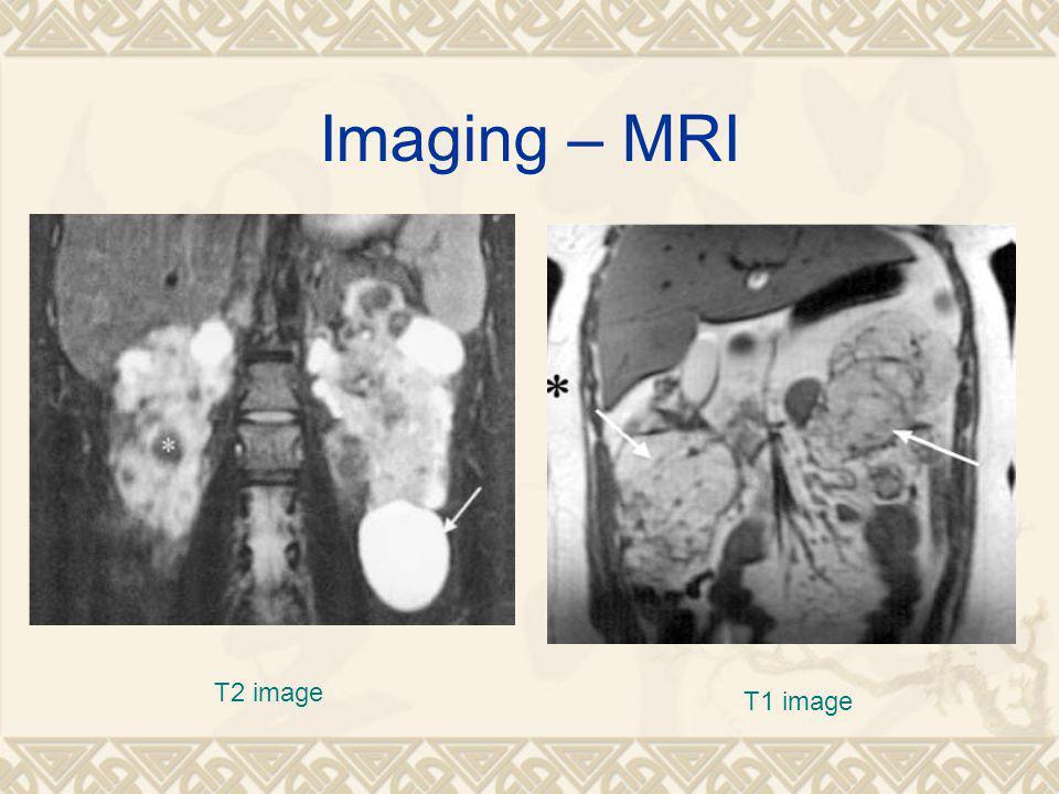 Imaging – MRI T1 image T2 image