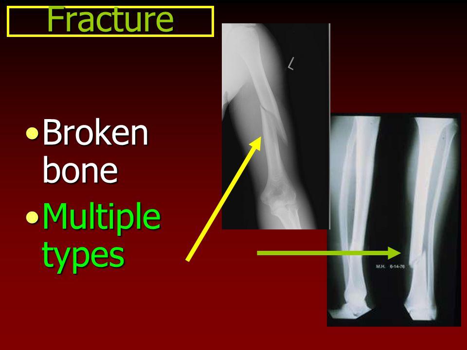 Fracture Broken boneBroken bone Multiple typesMultiple types