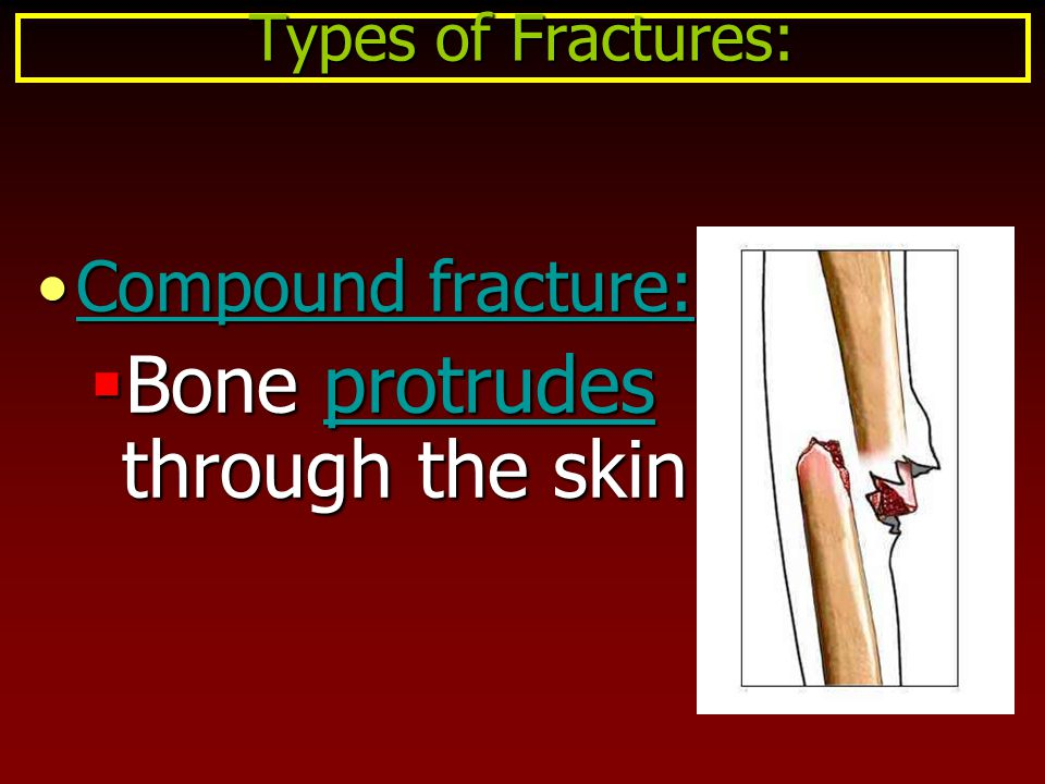 Compound fracture:Compound fracture:  Bone protrudes through the skin Types of Fractures: