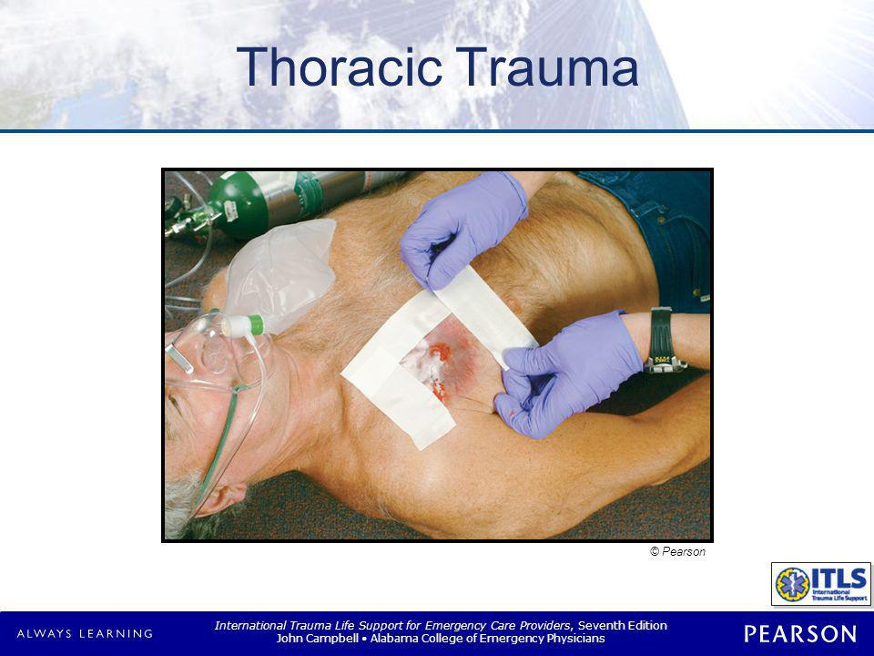 International Trauma Life Support for Emergency Care Providers, Seventh Edition John Campbell Alabama College of Emergency Physicians Summary Chest injuries common Often life-threatening –Require prompt recognition –Require prompt intervention –Frequently require load-and-go Airway and oxygenation always priority Frequent Ongoing Exams