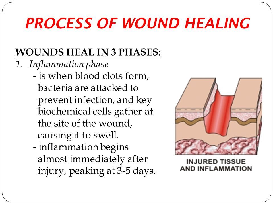PROCESS OF WOUND HEALING WOUNDS HEAL IN 3 PHASES : 1.Inflammation phase - is when blood clots form, bacteria are attacked to prevent infection, and ke