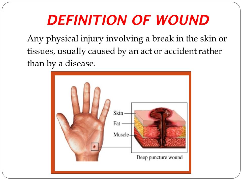 DEFINITION OF WOUND Any physical injury involving a break in the skin or tissues, usually caused by an act or accident rather than by a disease.