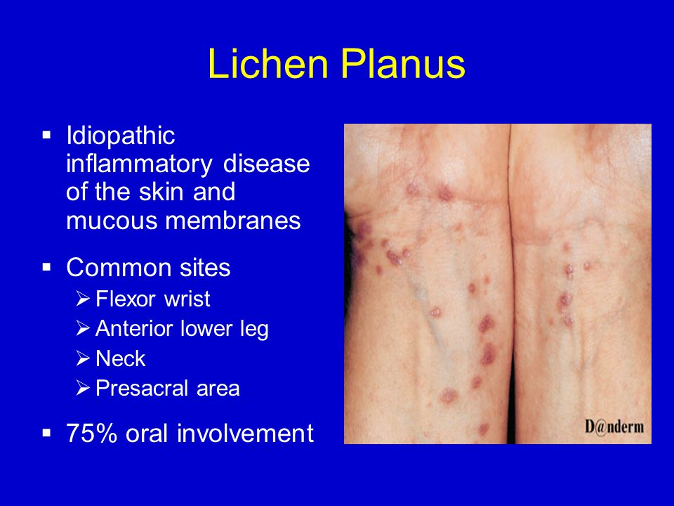 Lichen Planus  Idiopathic inflammatory disease of the skin and mucous membranes  Common sites  Flexor wrist  Anterior lower leg  Neck  Presacral area  75% oral involvement