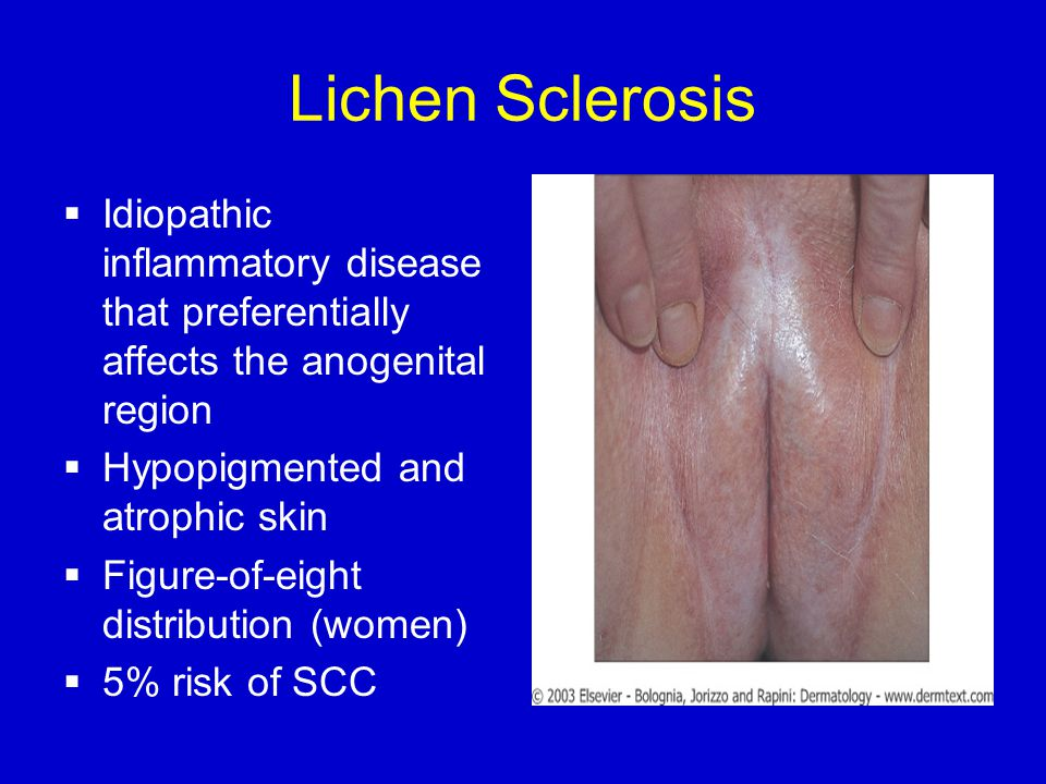 Lichen Sclerosis  Idiopathic inflammatory disease that preferentially affects the anogenital region  Hypopigmented and atrophic skin  Figure-of-eight distribution (women)  5% risk of SCC