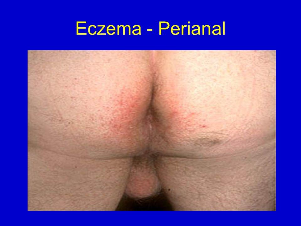 Eczema - Perianal