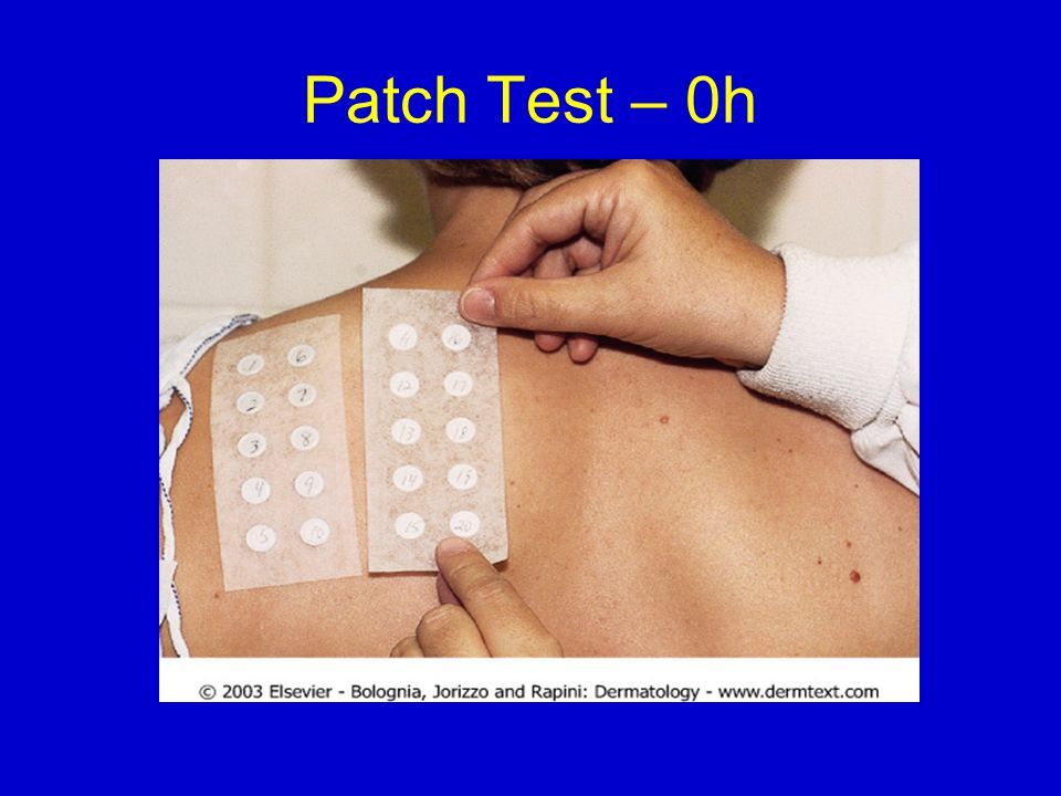 Patch Test – 0h