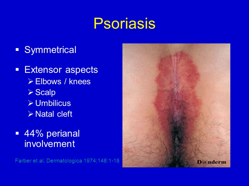 Psoriasis  Symmetrical  Extensor aspects  Elbows / knees  Scalp  Umbilicus  Natal cleft  44% perianal involvement Farber et al.