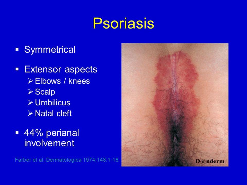 Psoriasis - Perianal