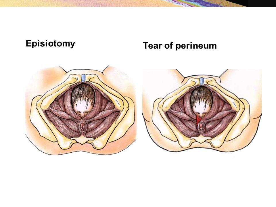 Episiotomy Tear of perineum