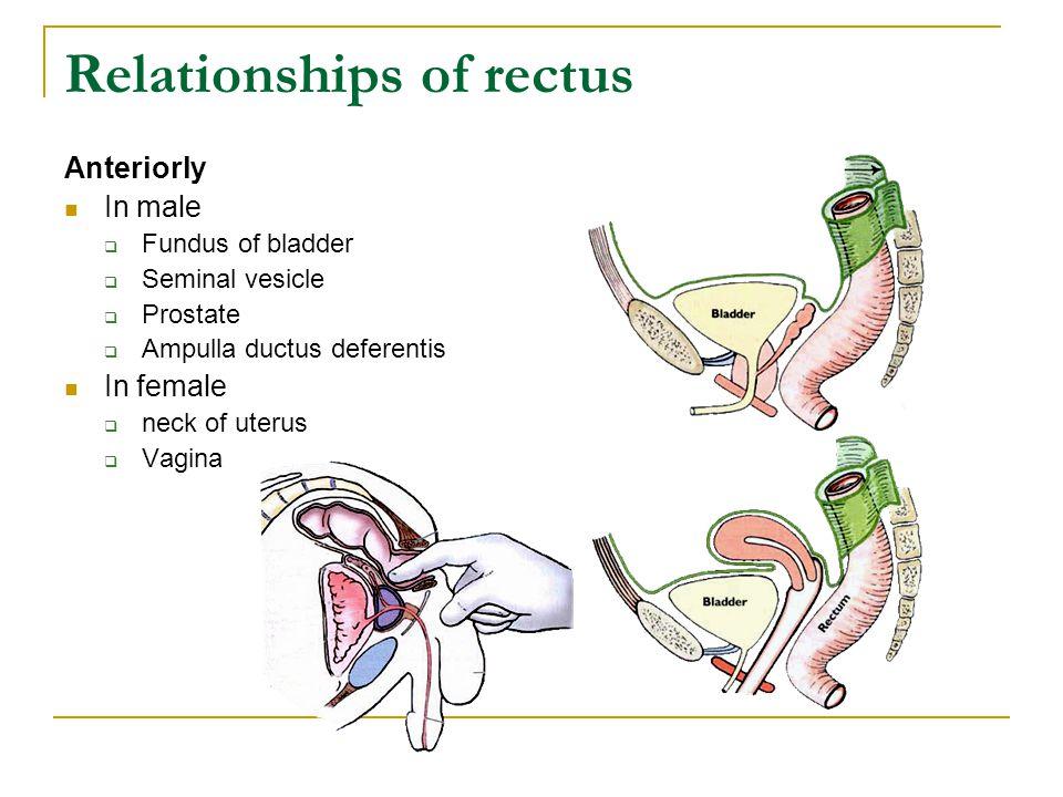 Relationships of rectus Anteriorly In male  Fundus of bladder  Seminal vesicle  Prostate  Ampulla ductus deferentis In female  neck of uterus  V