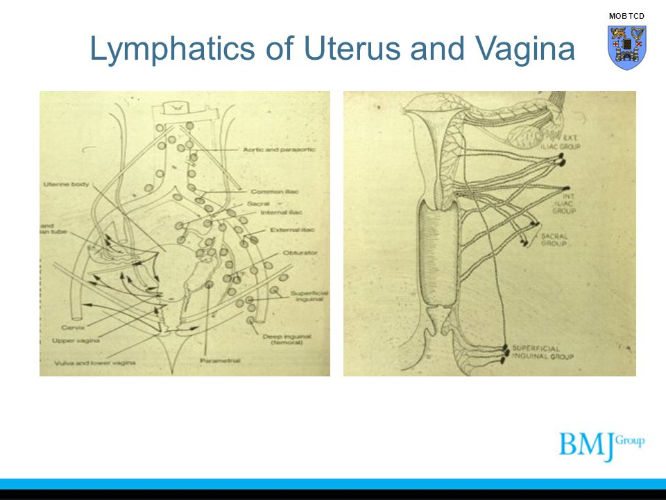 Lymphatics of Uterus and Vagina MOB TCD