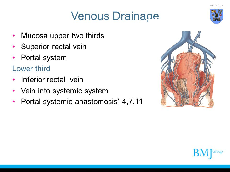 Venous Drainage Mucosa upper two thirds Superior rectal vein Portal system Lower third Inferior rectal vein Vein into systemic system Portal systemic
