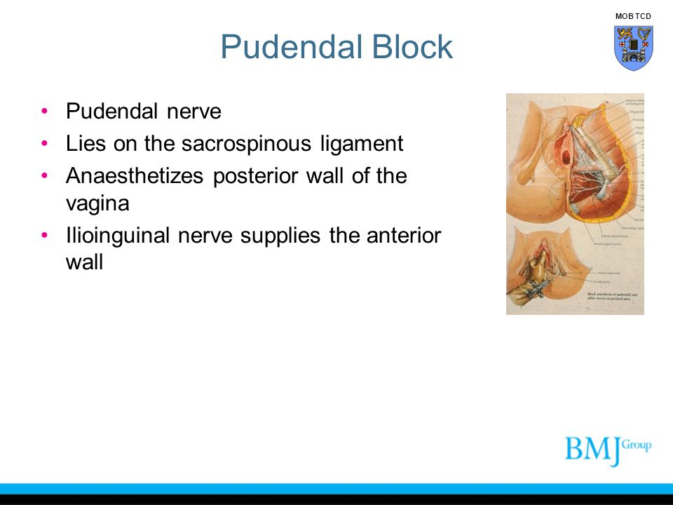 Pudendal Block Pudendal nerve Lies on the sacrospinous ligament Anaesthetizes posterior wall of the vagina Ilioinguinal nerve supplies the anterior wa