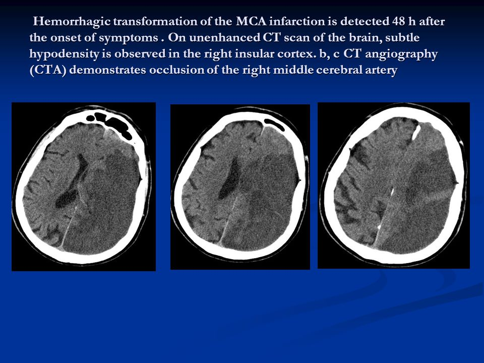 On unenhanced CT scan of the brain, subtle hypodensity is observed in the right insular cortex.