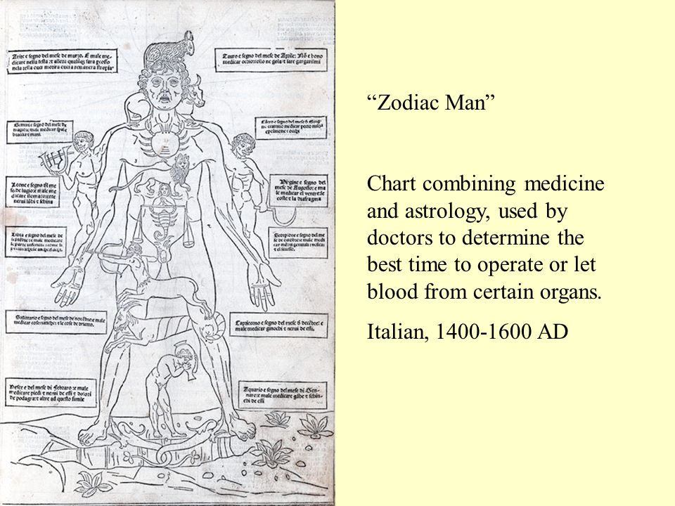 Zodiac Man Chart combining medicine and astrology, used by doctors to determine the best time to operate or let blood from certain organs.