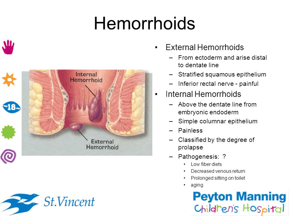 Hemorrhoids External Hemorrhoids –From ectoderm and arise distal to dentate line –Stratified squamous epithelium –Inferior rectal nerve - painful Inte