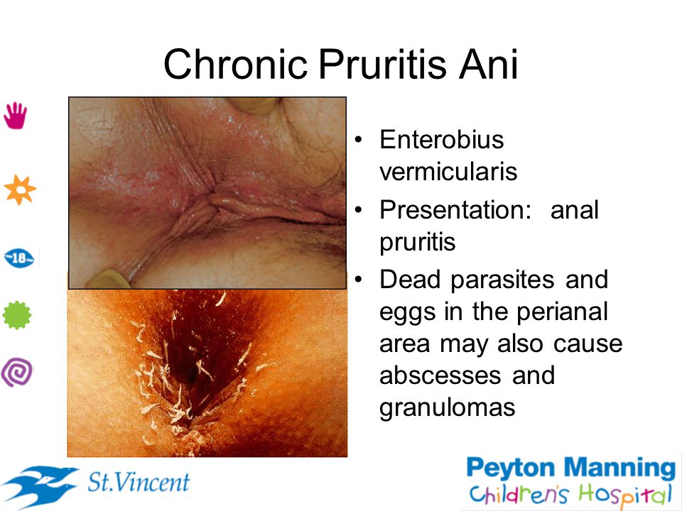 Chronic Pruritis Ani Enterobius vermicularis Presentation: anal pruritis Dead parasites and eggs in the perianal area may also cause abscesses and gra