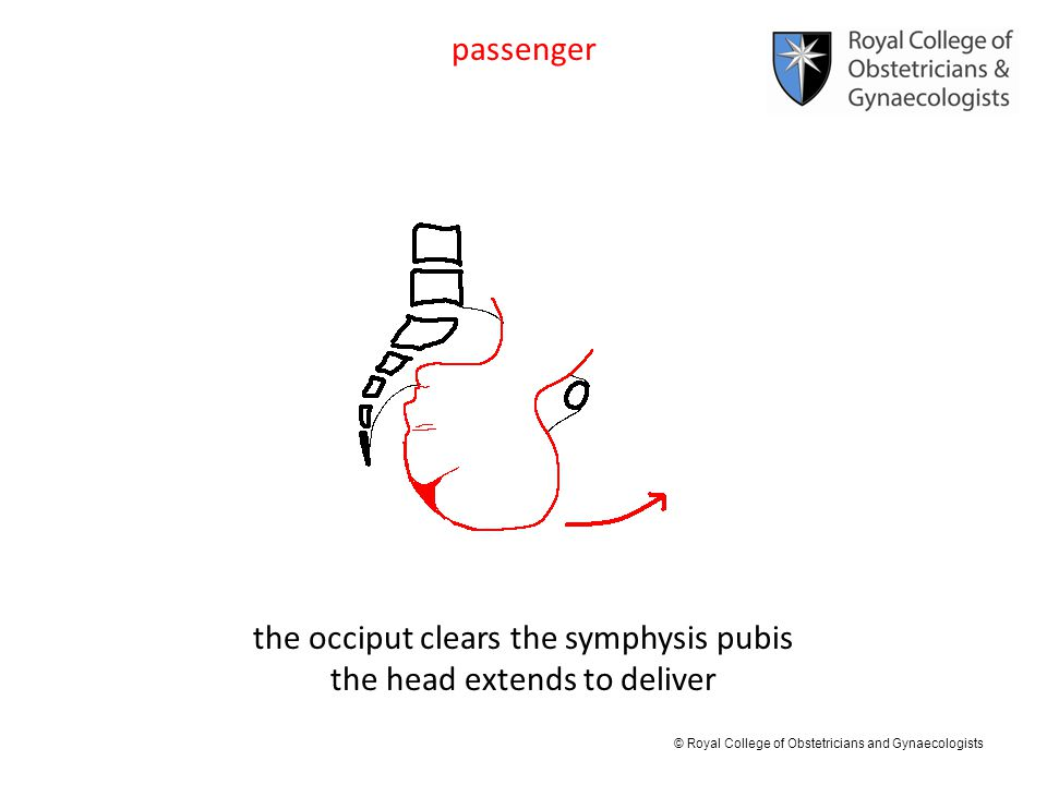 © Royal College of Obstetricians and Gynaecologists passenger the occiput clears the symphysis pubis the head extends to deliver