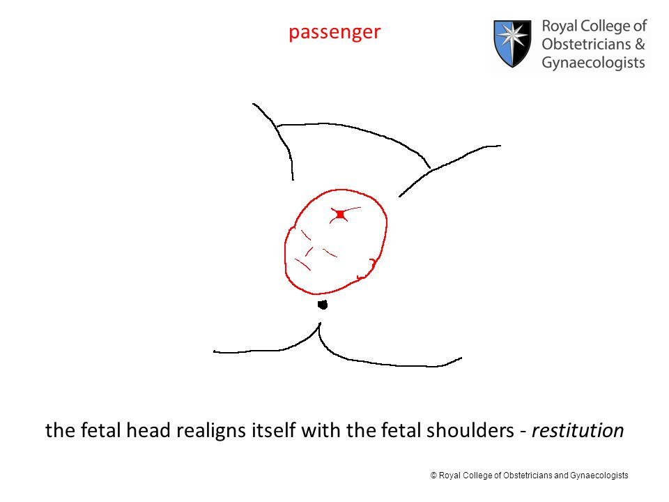 © Royal College of Obstetricians and Gynaecologists passenger the fetal head realigns itself with the fetal shoulders - restitution