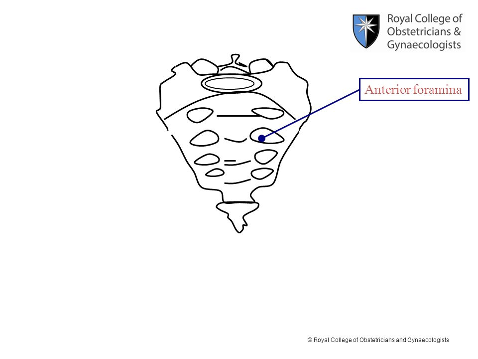 © Royal College of Obstetricians and Gynaecologists Anterior foramina