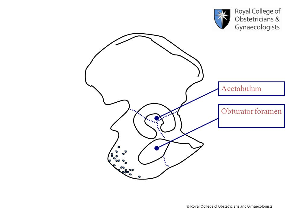 © Royal College of Obstetricians and Gynaecologists Obturator foramen Acetabulum