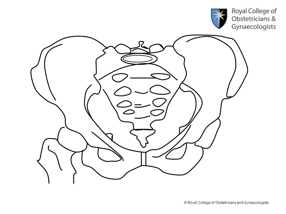 © Royal College of Obstetricians and Gynaecologists Look at the pelvis from the front again.