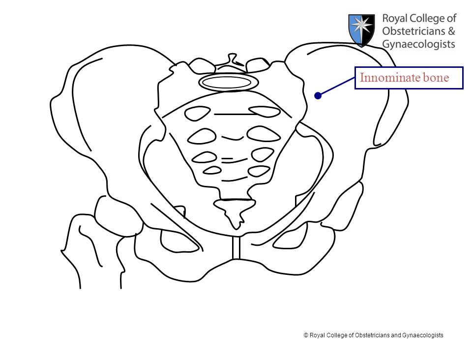 © Royal College of Obstetricians and Gynaecologists Iliac crest Pelvic brim Ischial tuberosity