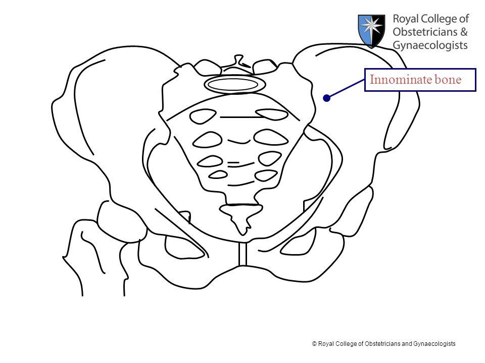 © Royal College of Obstetricians and Gynaecologists Labium minus Labium majus